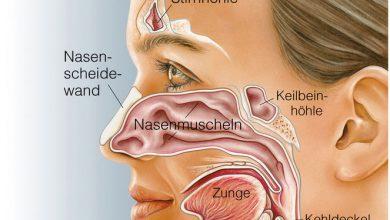 Photo of Wenn die Nase permanent zu ist